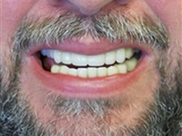 Four Implants can restore a beautiful smile!