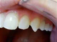 Metal free bridge, alternative to implant.