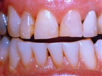 Un-even Discolored Teeth Before