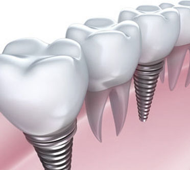 Dental Implants Holtsville